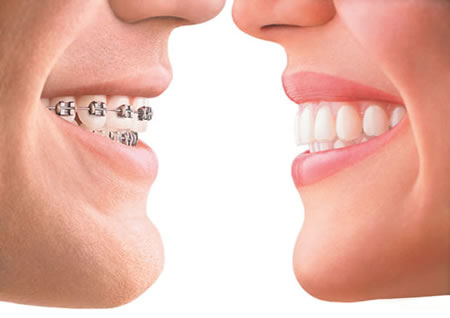implantes dentales tenerife