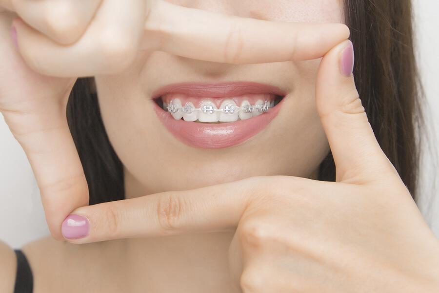 edad y ortodoncia